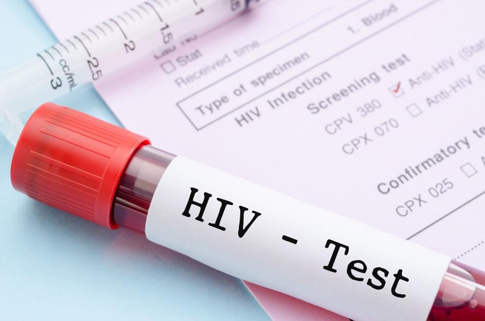HIV-Schnelltest in Kooperation mit dem Gesundheitsamt Bonn